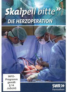 Herzoperation Spiele
